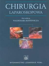 Chirurgia laparoskopowa