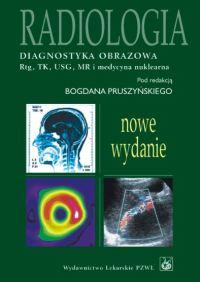 Radiologia. Diagnostyka obrazowa Rtg, KT, USG, MR i medycyna nuklearna